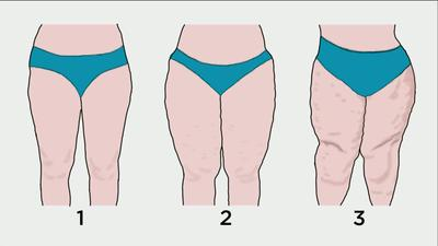 As diferentes fases do lipoedema